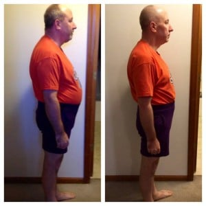 Chiropractic Overland Park KS Weight Loss Male Patient